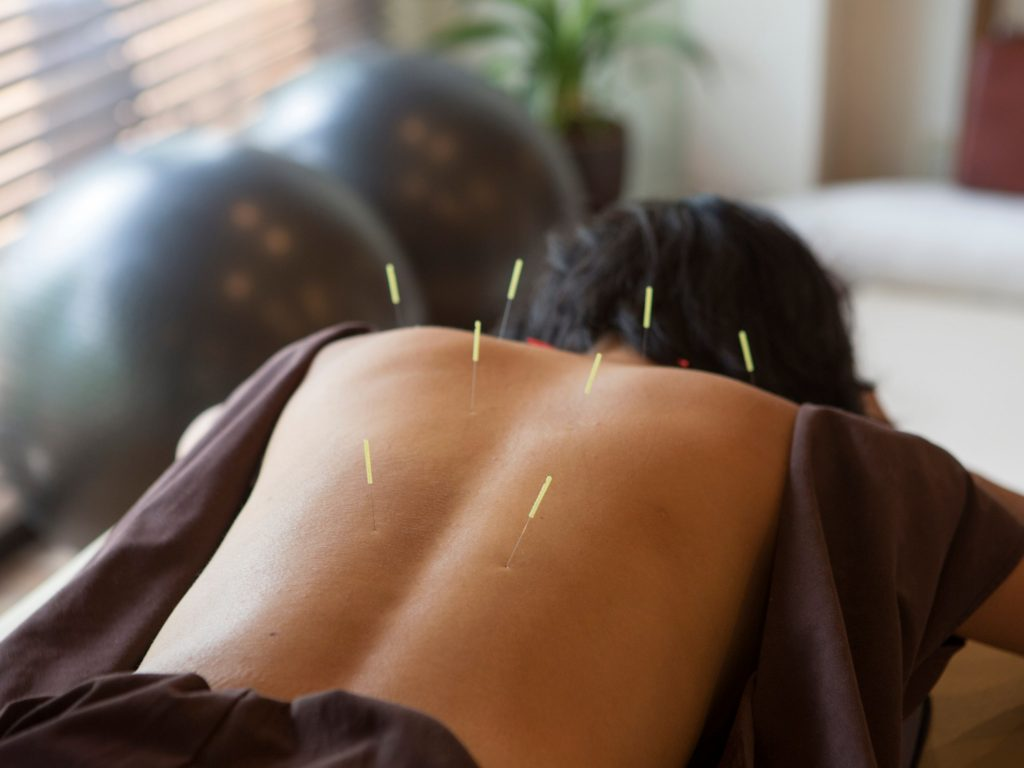 acupuncture assist the human body